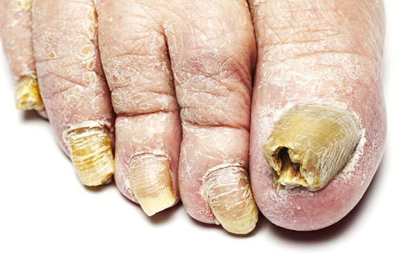 Fungal Infections in Boynton Beach